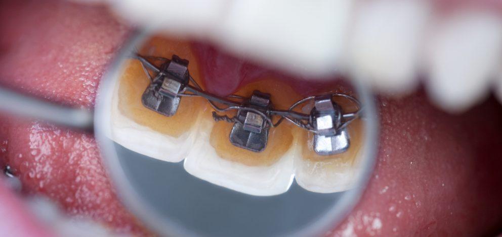 Finaghy Orthodontics Hidden Braces
