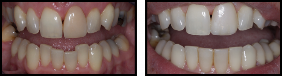 Stm Orthodontics Hiddenbraces