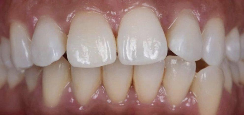 Stm Advicecare Denture Repair