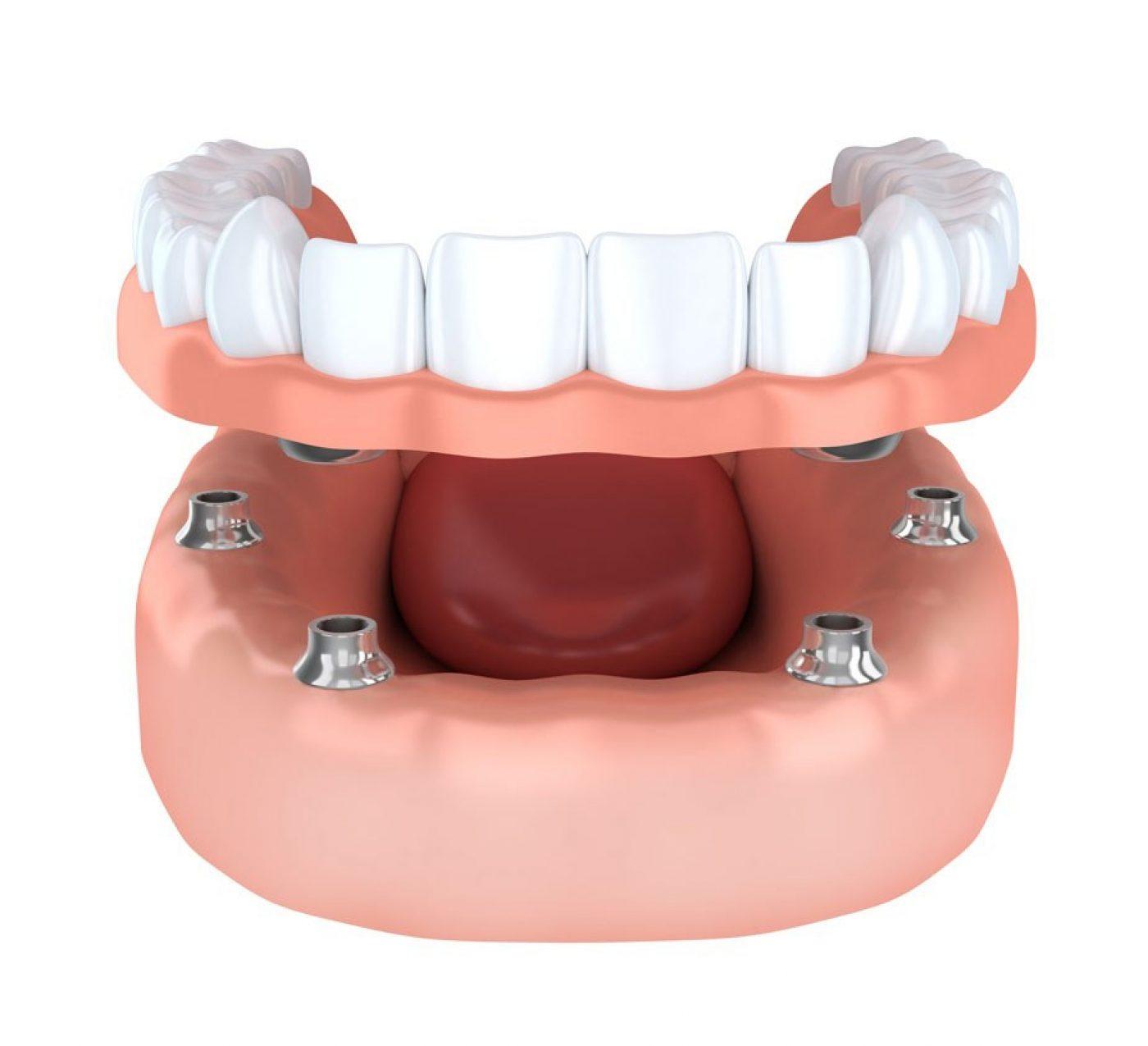 hdic Orthodontics Free Consultation