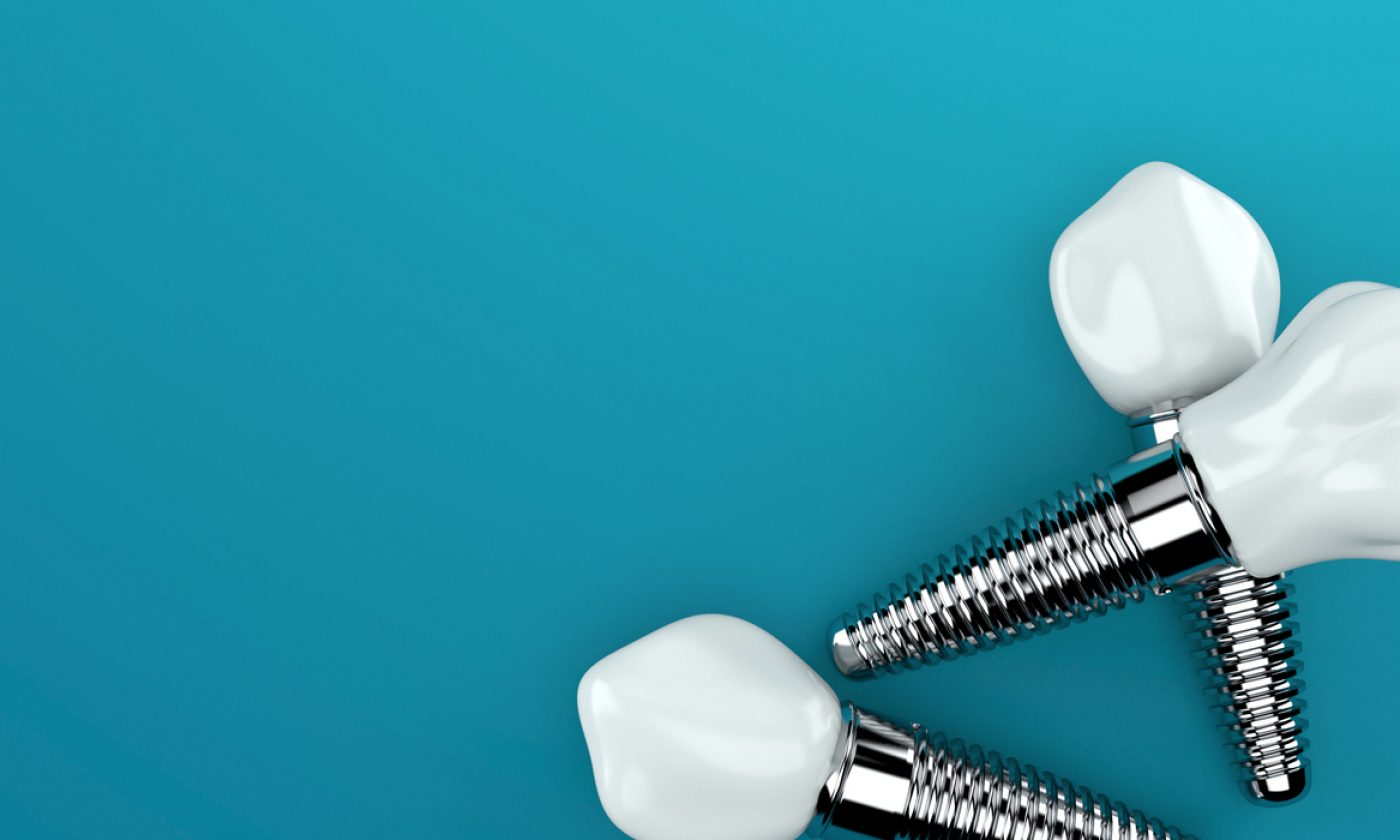 Dental Implants Courtrai House Dental Implant Clinic