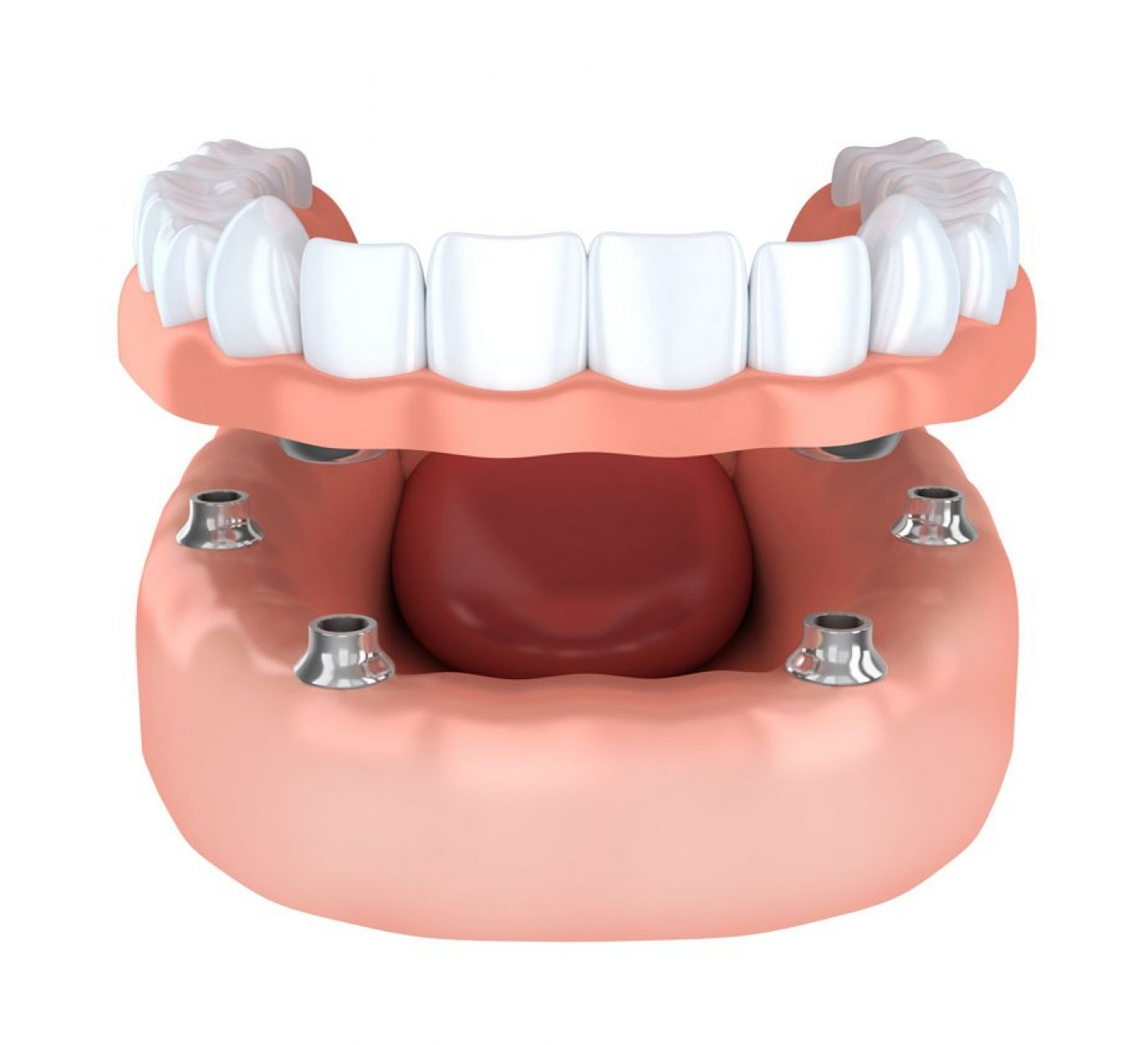 Wootton Bridge Dental Implants Sameday
