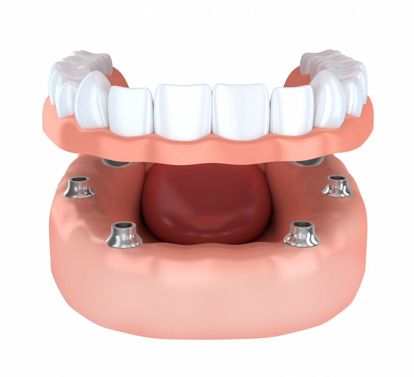 Granville Dental Implants 4