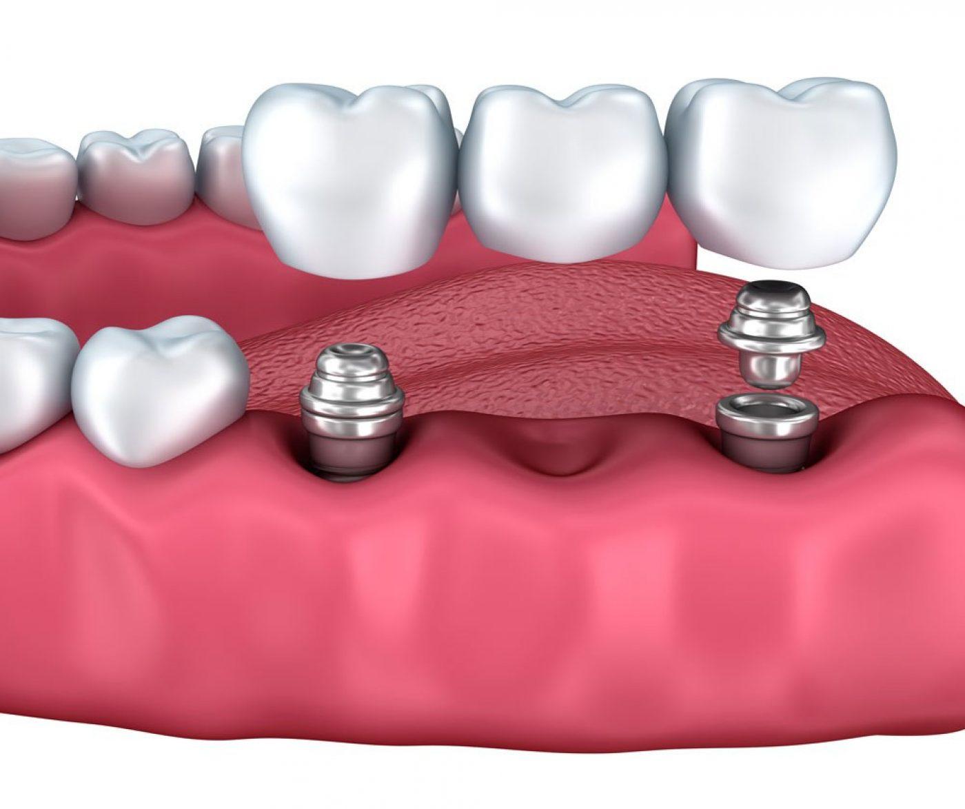 Lavender Dental Implants Multiple