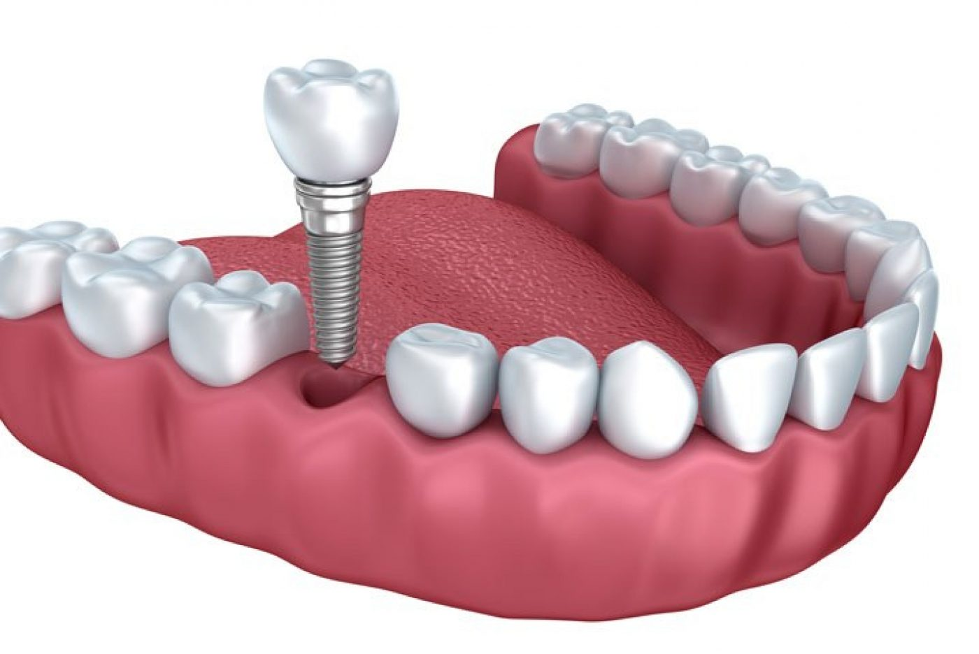 Lavender Dental Implants Single