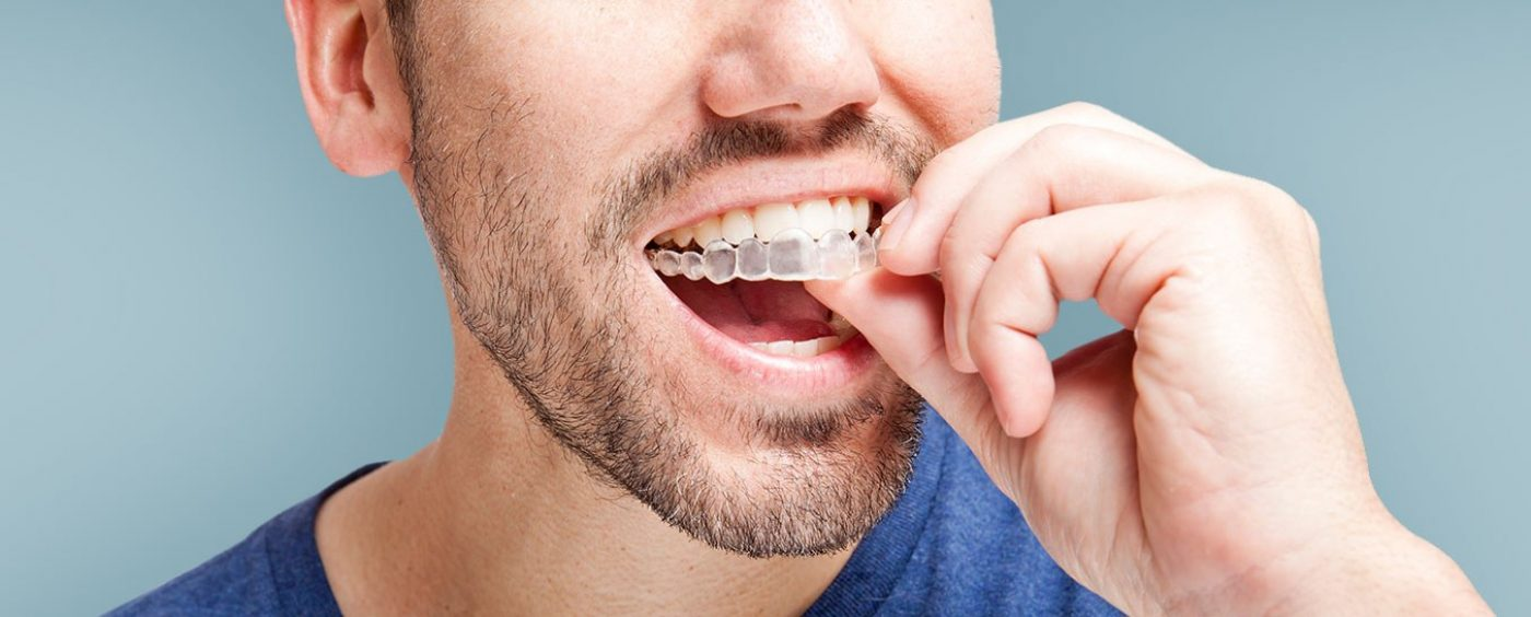 Harleystreet Orthodontics Invisalign