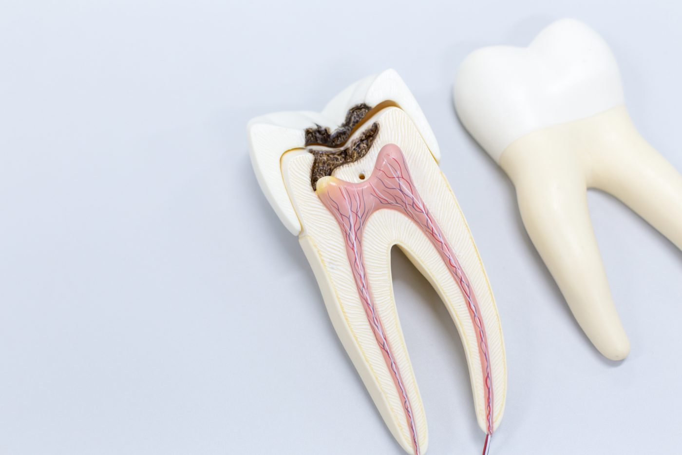 Haynes Root Canal