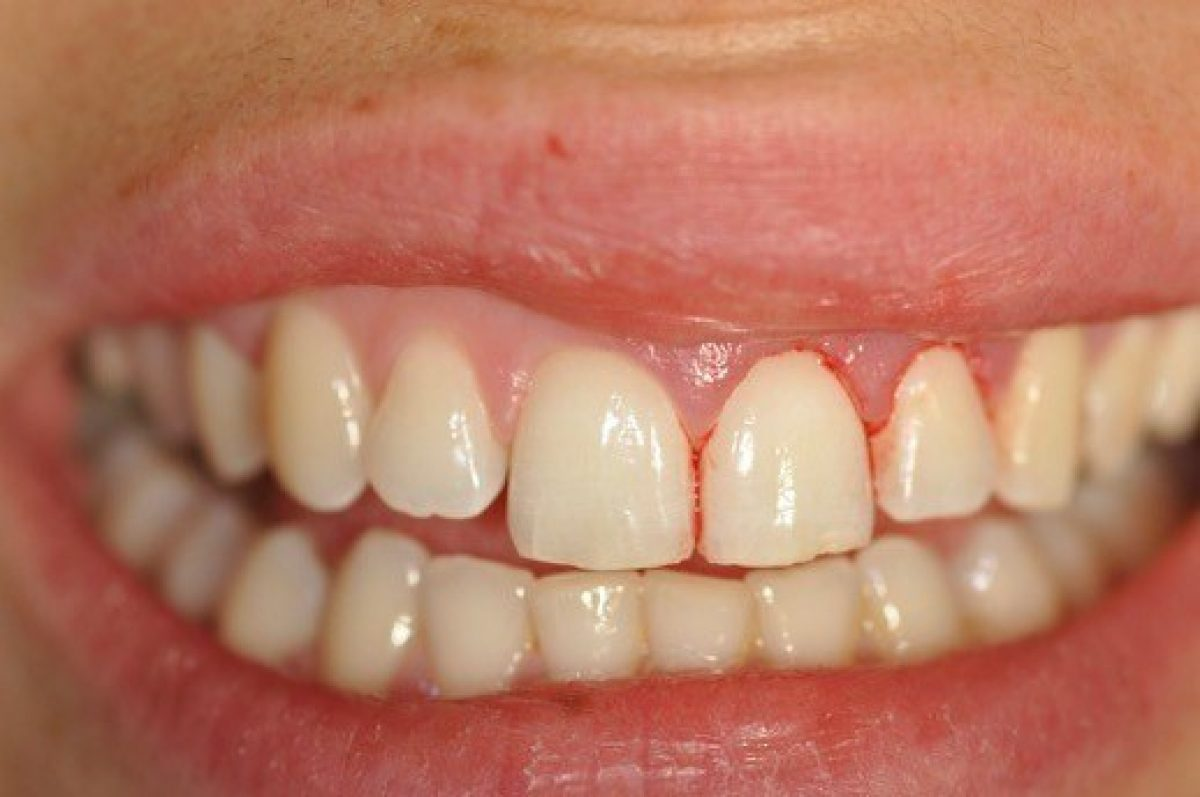 Crowns Courtrai House Dental Implant Clinic