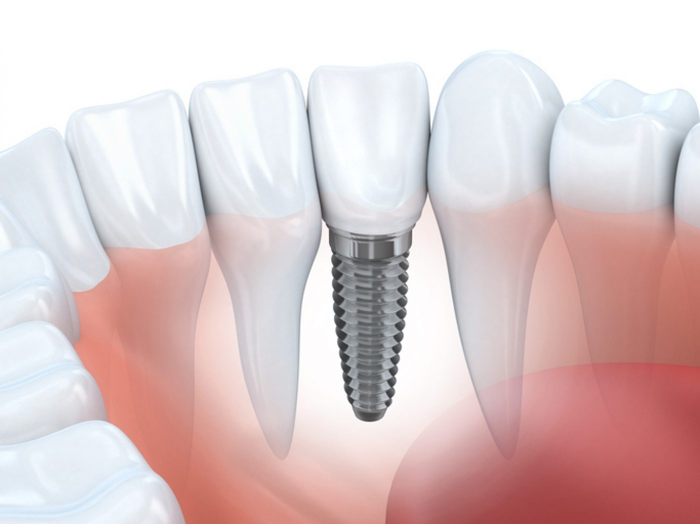 Single Implant Portman Dental And Implant Clinic Maidenhead