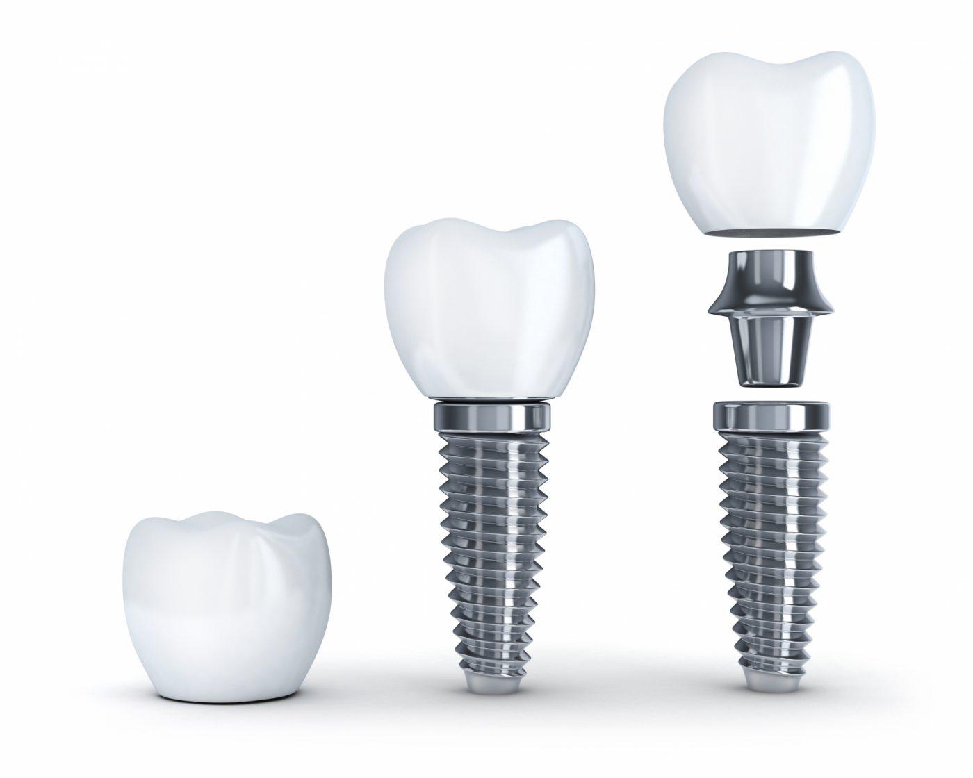 Crowns Portman Dental And Implant Clinic Maidenhead