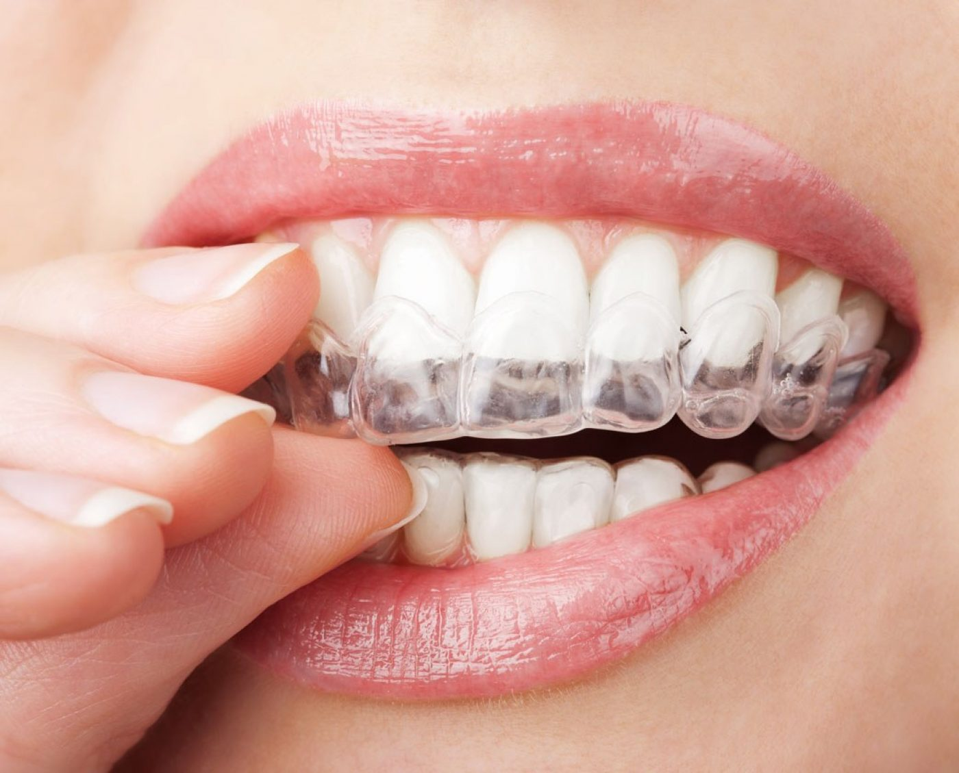 Homemill Orthodontics Clearaligners