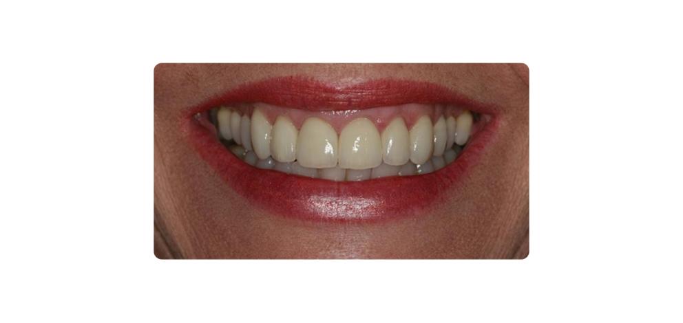 Hawkins Dental Implants Multiple