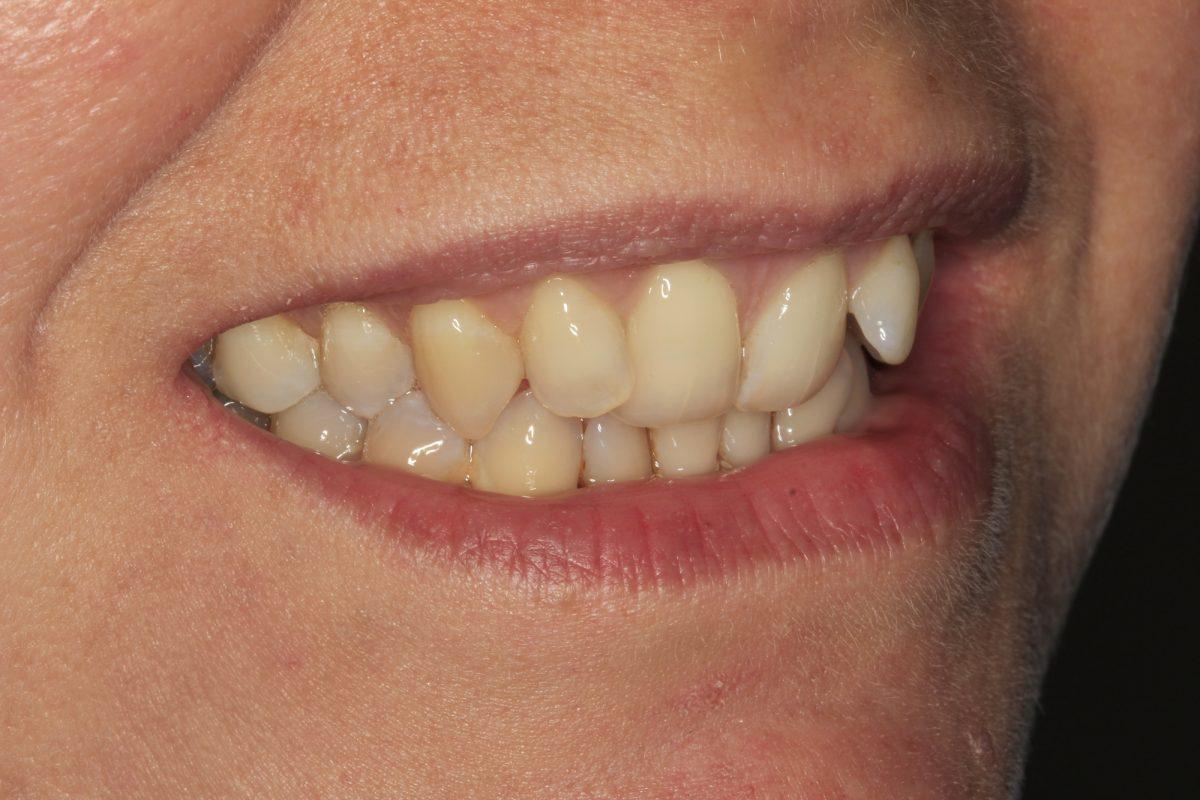Dental Phobia Courtrai House Dental Implant Clinic