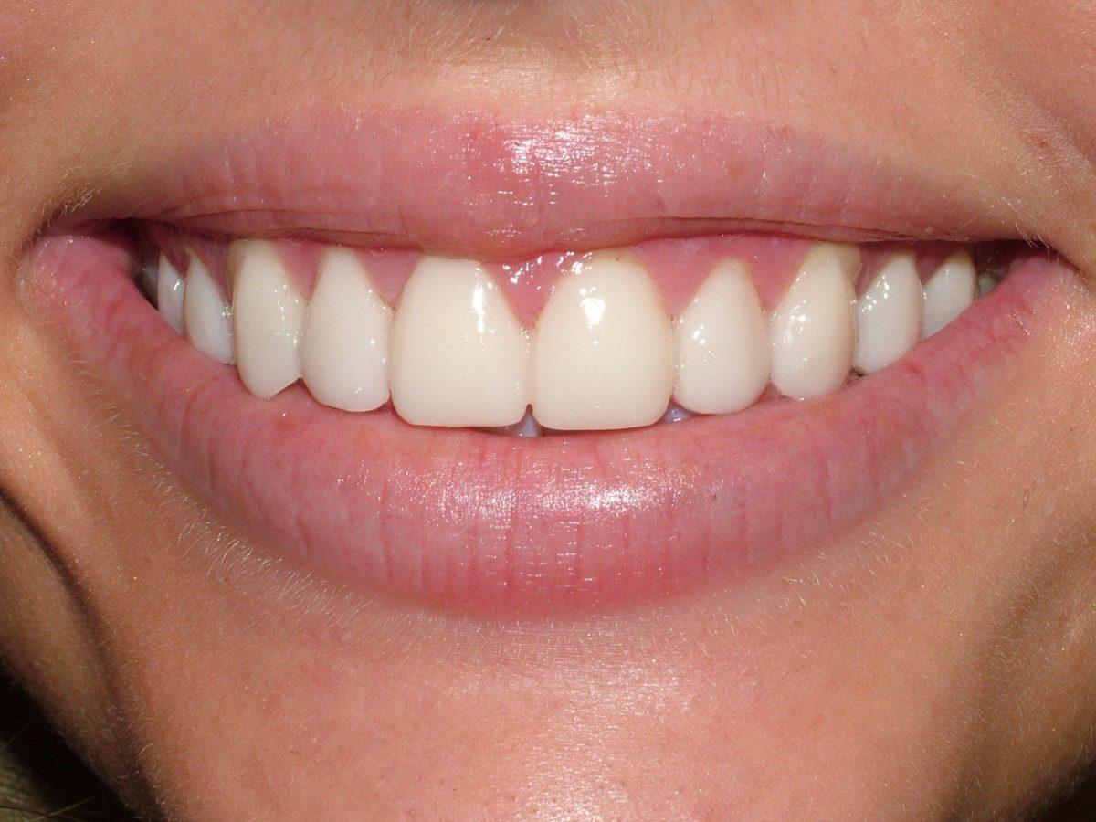 Dental Implants Multiple Courtrai House Dental Implant Clinic
