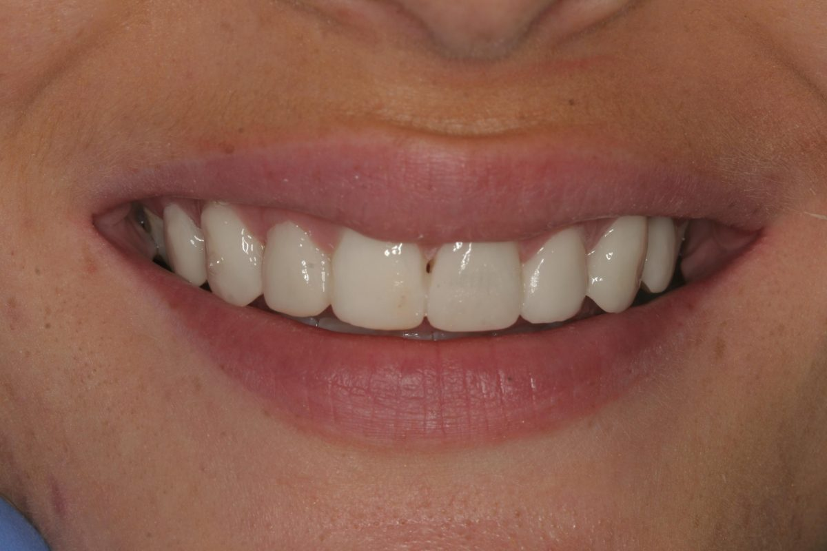 Dental Implants Single Courtrai House Dental Implant Clinic