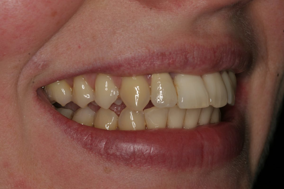 Ferndale Dentalphobia