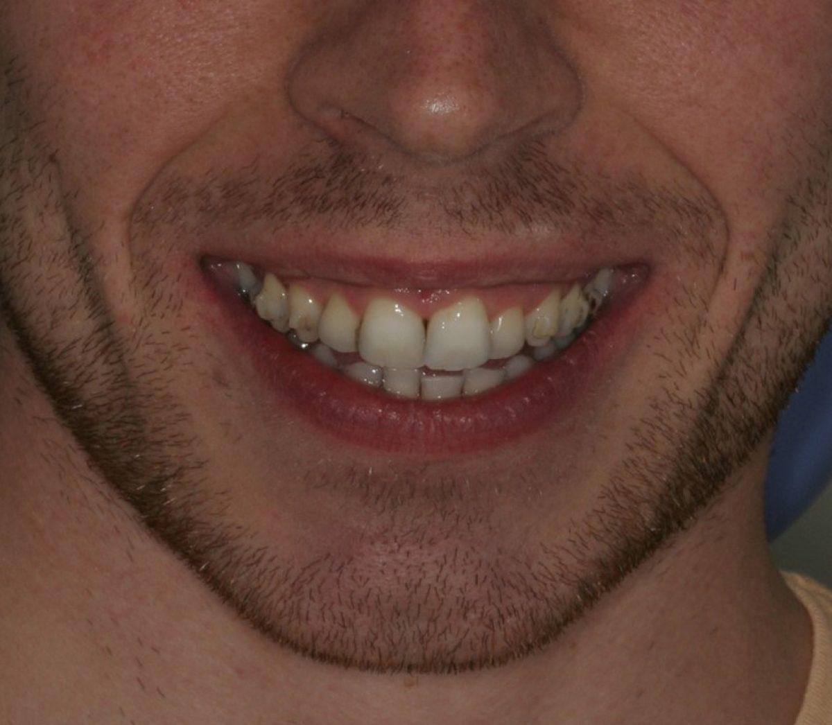 Good Dental Health Courtrai House Dental Implant Clinic