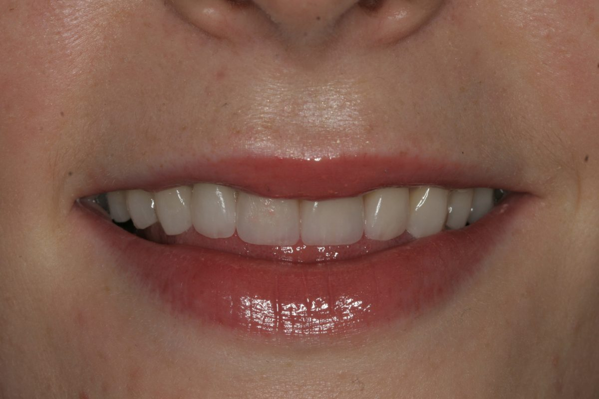 Post Treatment Close Up Smile 114