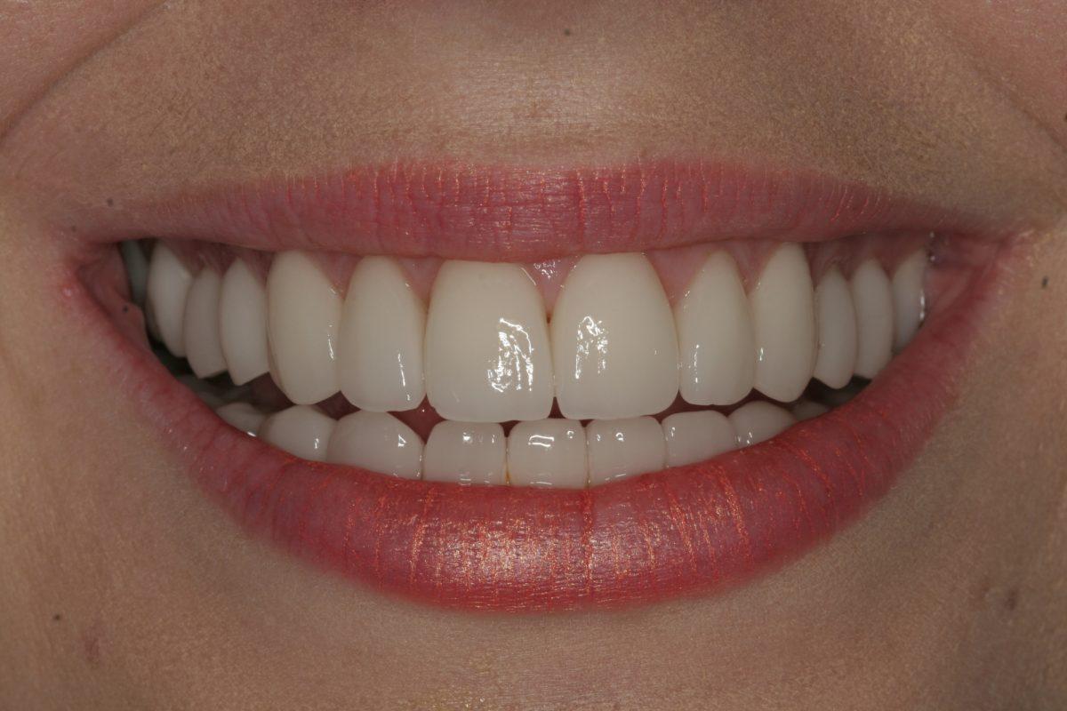 Vicky After Close Up Smile