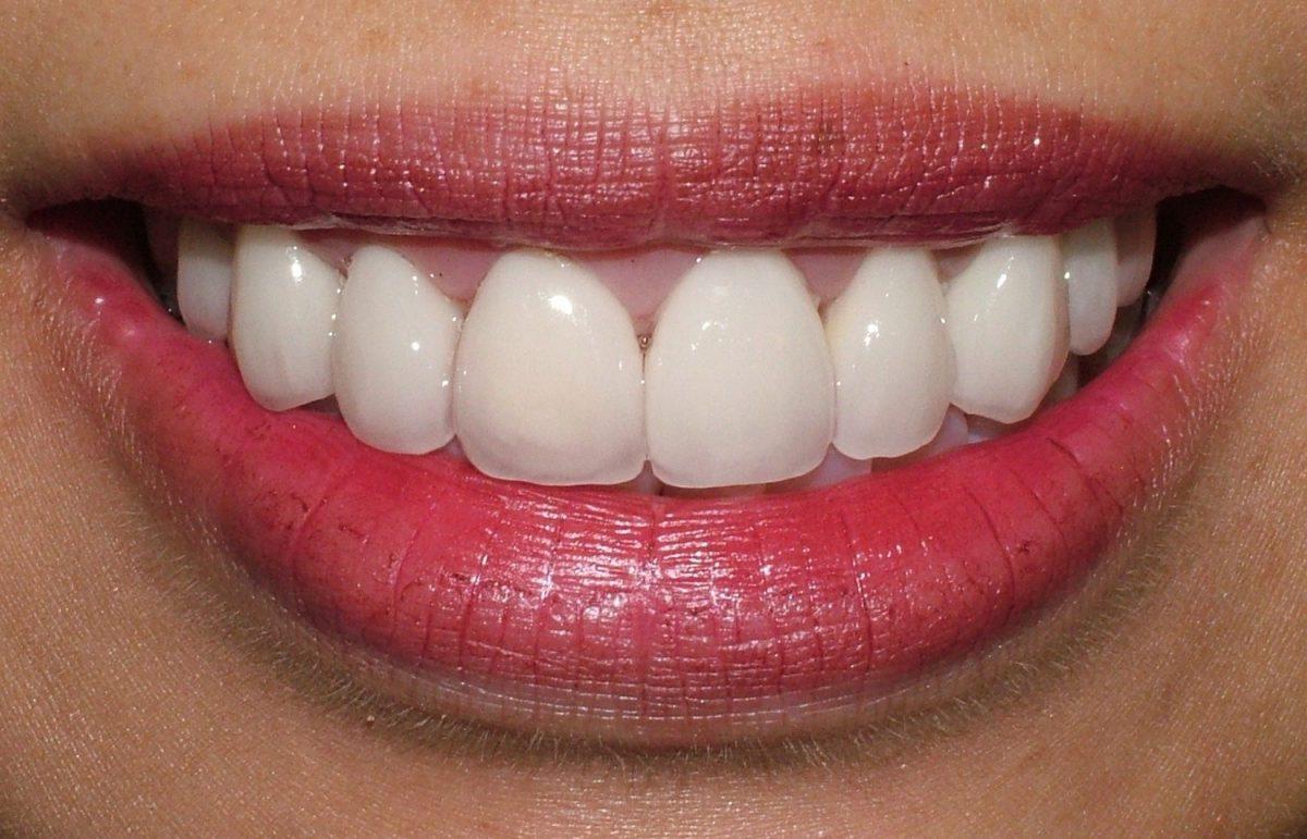 Stm Orthodontics Cosmetic