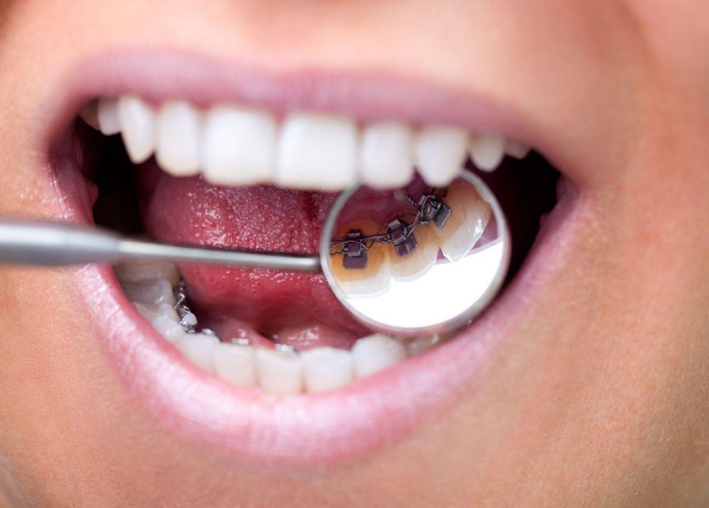 Orthodontics Hidden Braces Uppingham Dental Implant Clinic