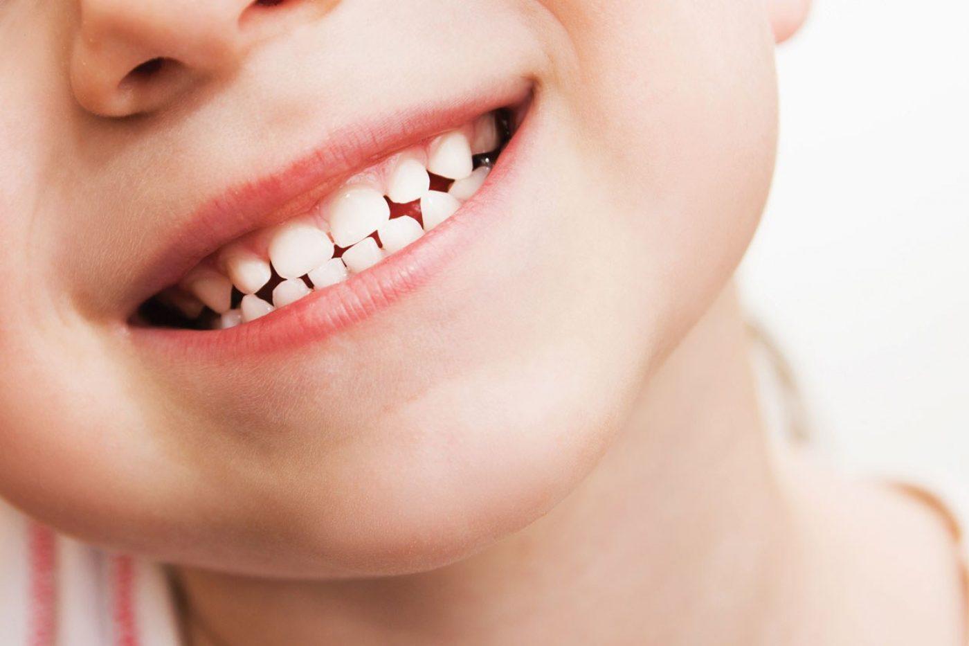 Portway Dental Advicecare Children 1