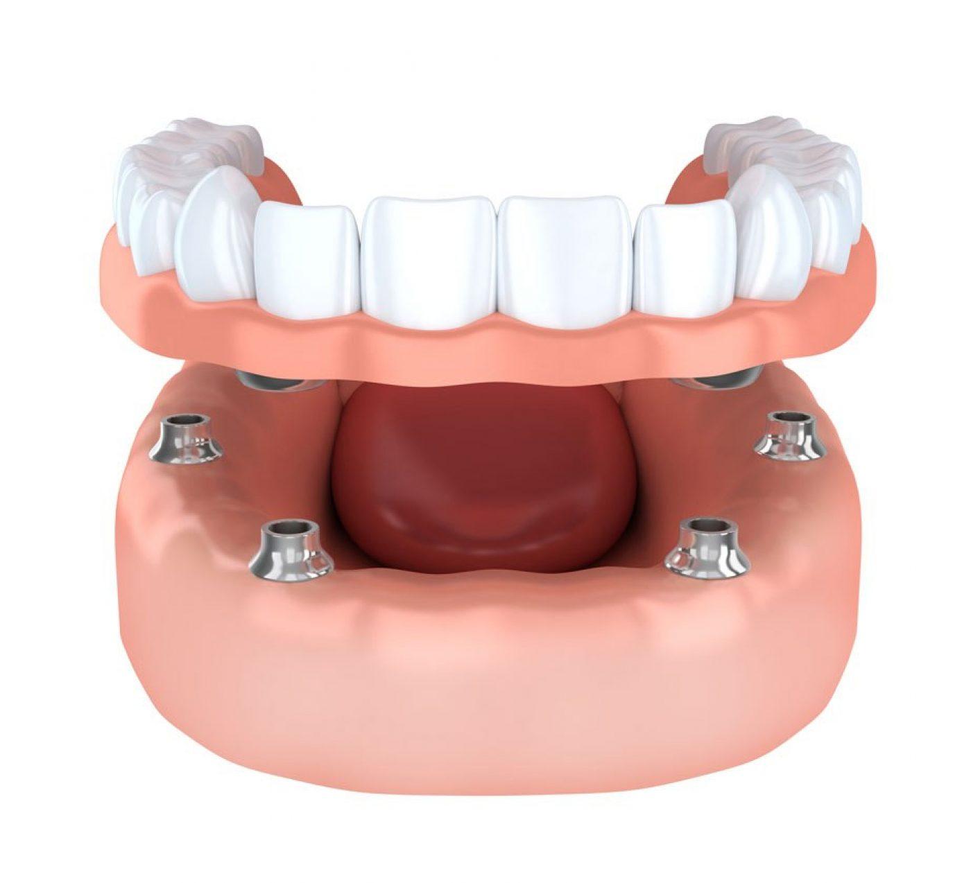 Parkside Dental Implants Sameday