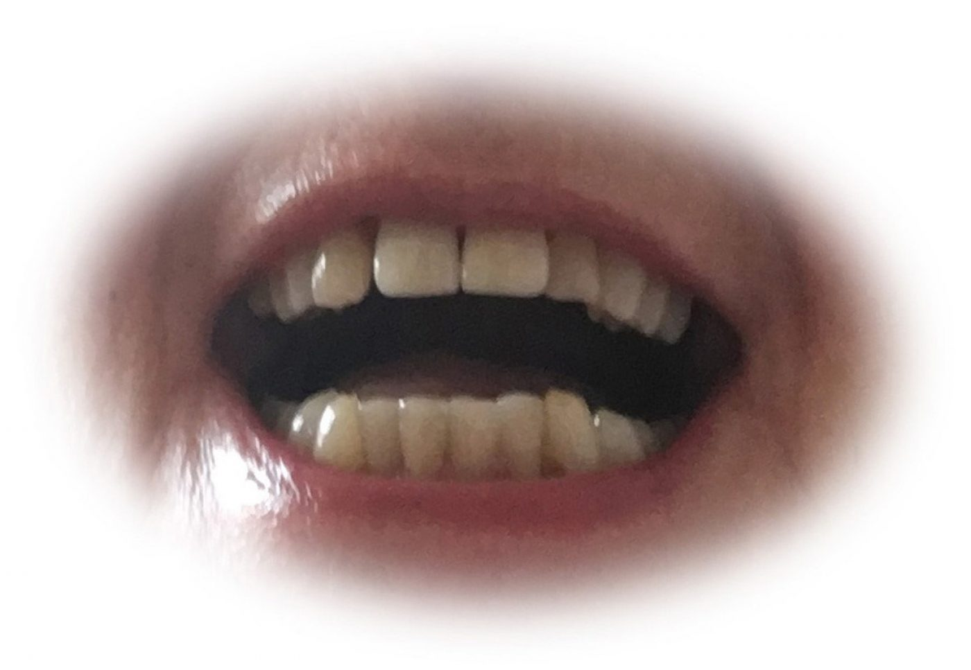 Curly Teeth After
