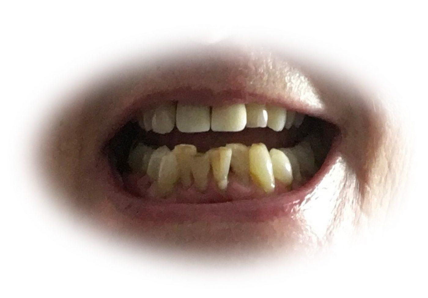 Curly Teeth Before