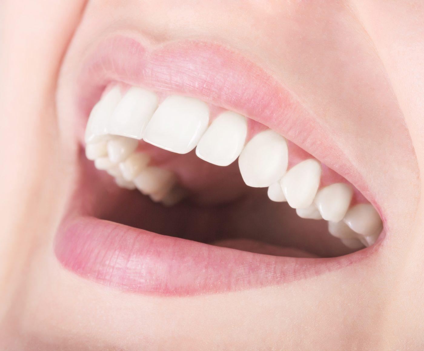 Single Dental Implant 537432362