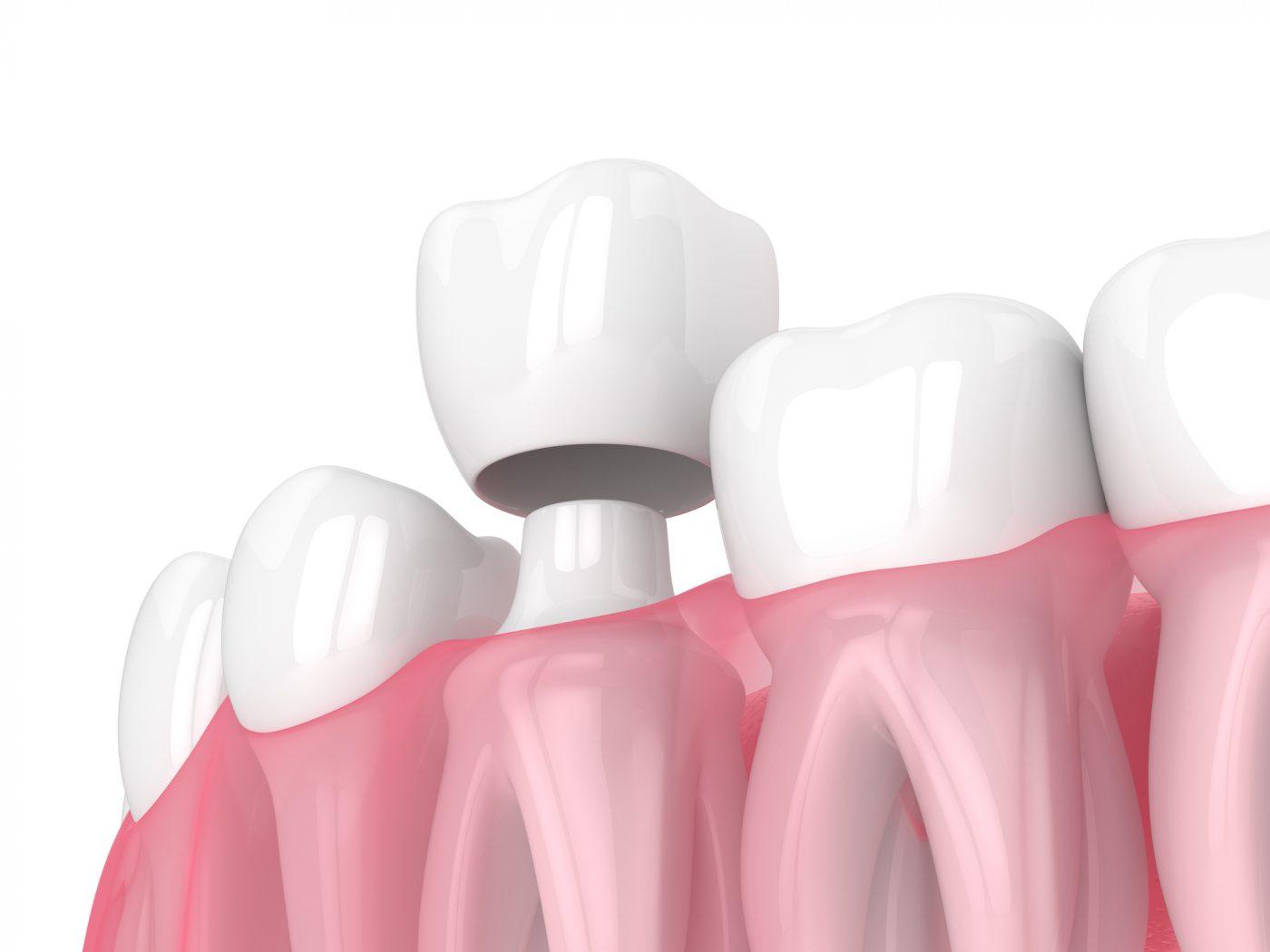 Lymebay Replacing Teeth Bridge