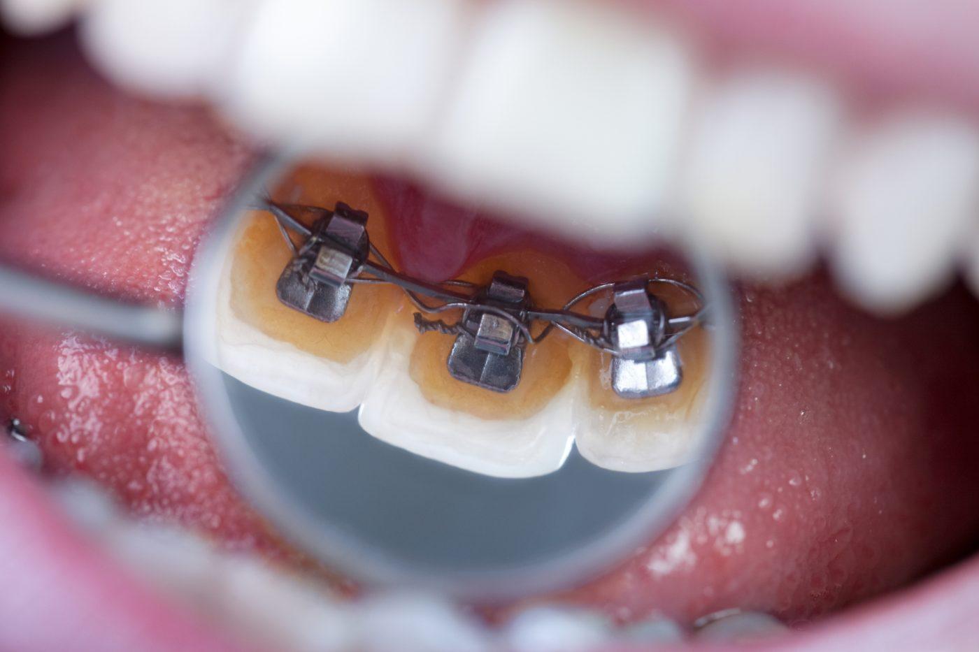 Dentist Colleague Newland Dental Care Lincoln