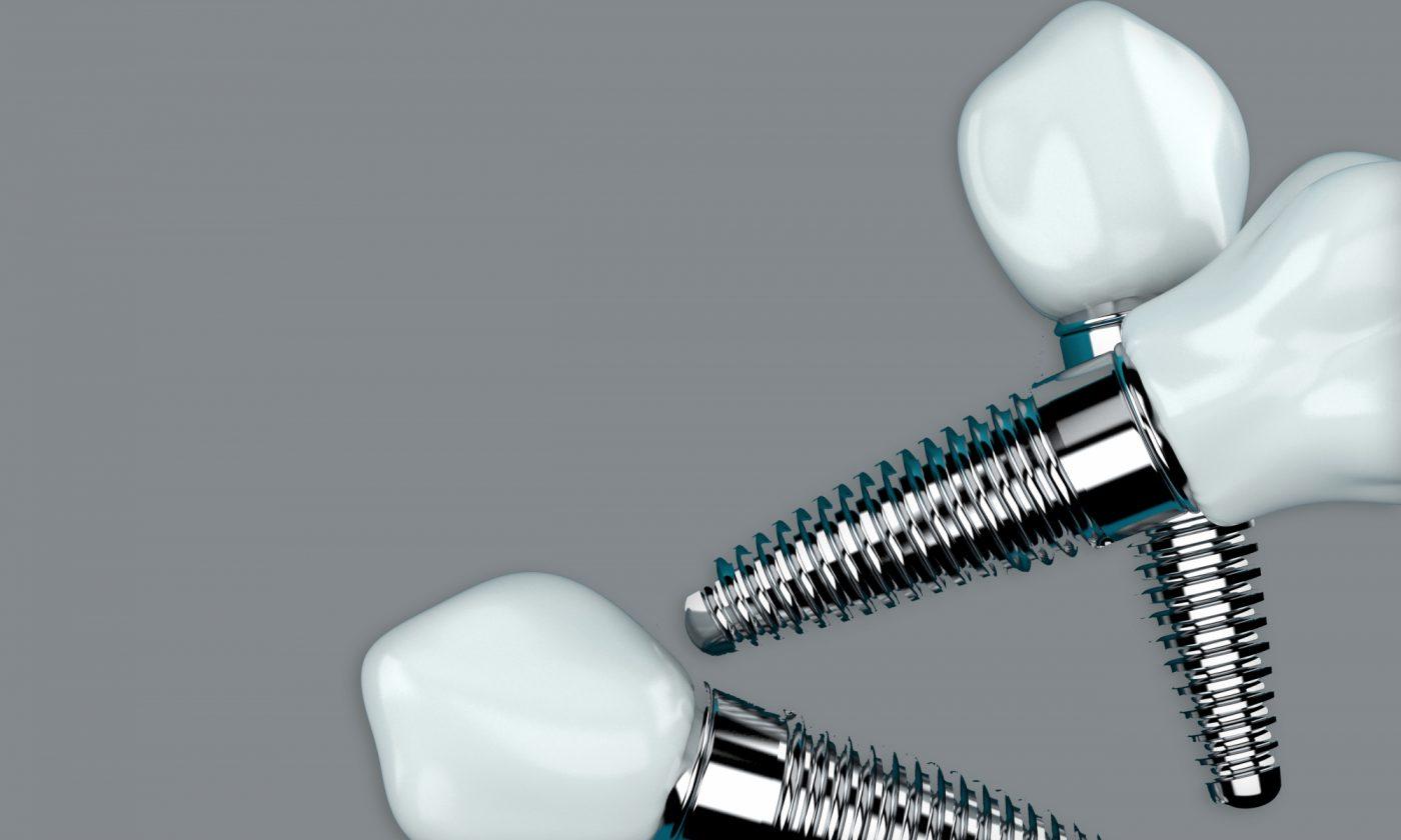 Freemanrosser Carmarthen Dental Implants Multiple