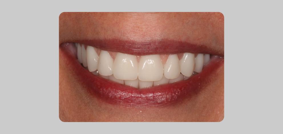 Freemanrosser Carmarthen General Dentistry Extractions